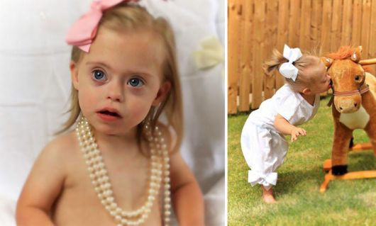 2-Year-Old Girl With Down Syndrome